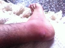 my poor foot...